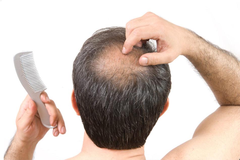 alopecia-alimentacao-tsh