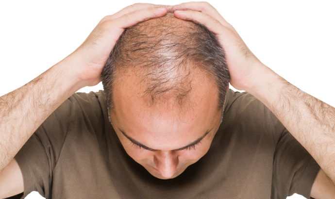 alopecia-androgenetica-tsh