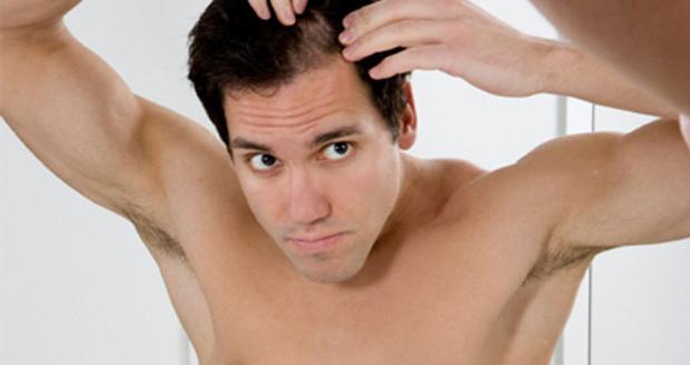 alopecia-ciclo-capilar-masculino